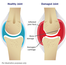 Illustration of healthy joint versus damaged joint