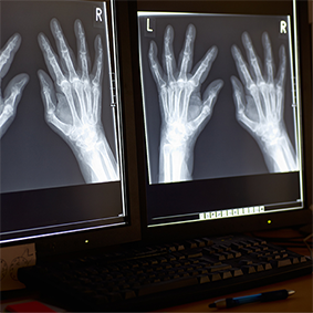 X-ray of patient's hands